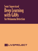 Semi-Supervised Deep Learning with GANs for Melanoma Detection