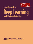 Semi-Supervised Deep Learning for Melanoma Detection